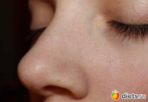 маска от капилляров на лице