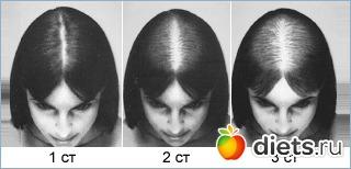 Лечебные маски для волос и роста